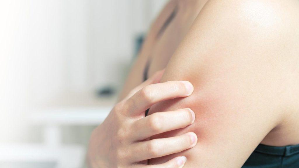 アトピー性皮膚炎・蕁麻疹・肌のかゆみ
