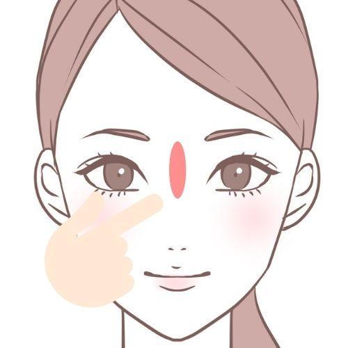 鼻や眉間のニキビ