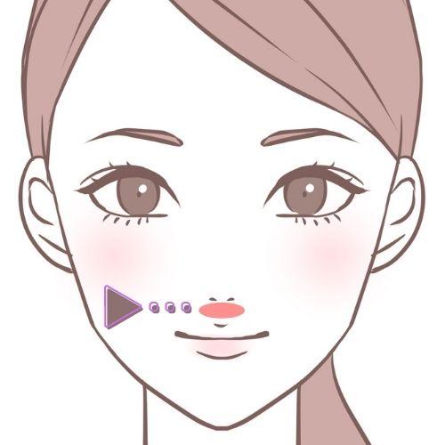 鼻の下のニキビ・鼻下・口の間